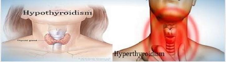 Perbedaan-Hipotiroid-dan-Hipertiroid
