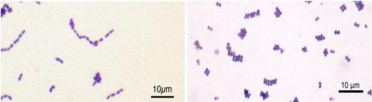 Perbedaan-Streptococcus-dan-Staphylococcus