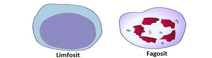Perbedaan Limfosit dan Fagosit